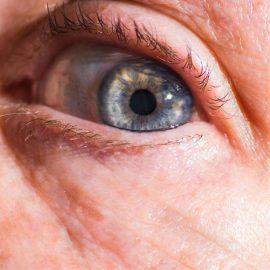 Principais doenças dos olhos no idoso